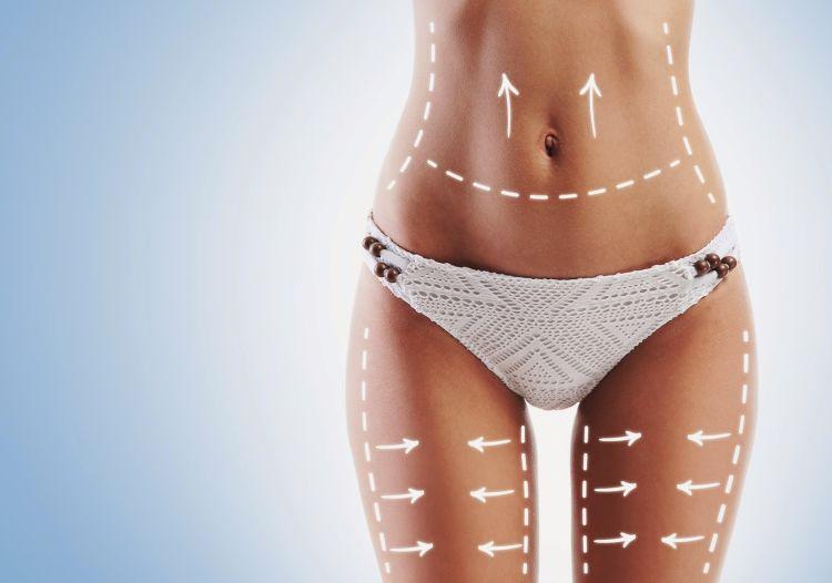 tratamiento liposuccion