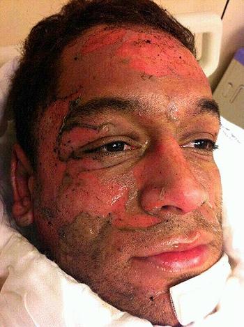 Cara quemada de Thiago Cunha Foto de la cara de Thiago Cunha quemada