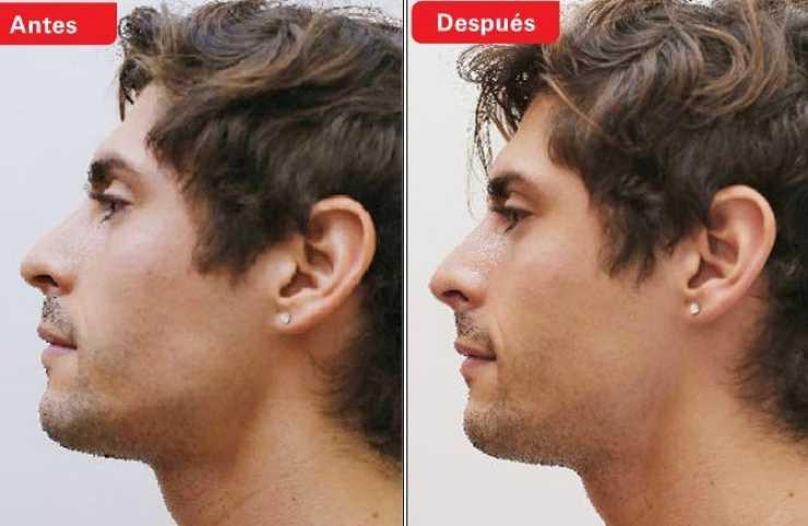 cristobal alvarez nariz